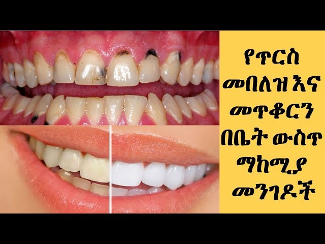 Home Remedies for Teeth Whitening And Remove Black Spots On Your Tooth