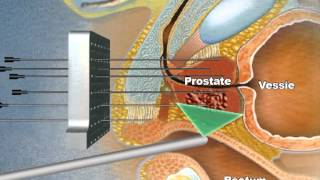 animation cryo prostate