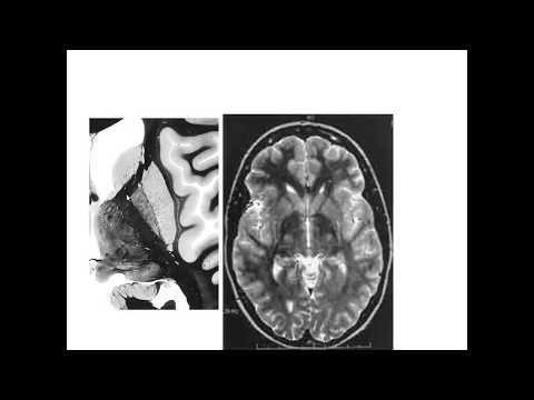 Конечный мозг: базальные ядра