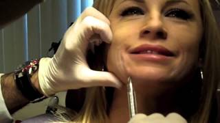 Cannula Method for Fillers   Dr  Nissan Pilest Irvine, CA
