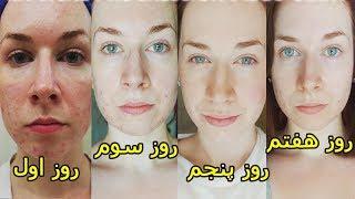 ۵ روش خانگی برای سفید کردن پوست