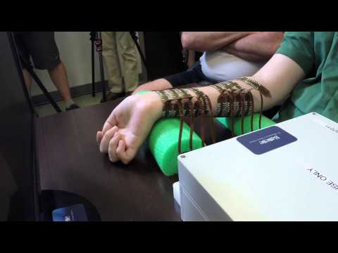 Paralyzed man moves his hand controlled by his own brain for the first time.