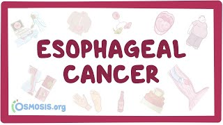 Esophageal cancer - causes, symptoms, diagnosis, treatment, pathology