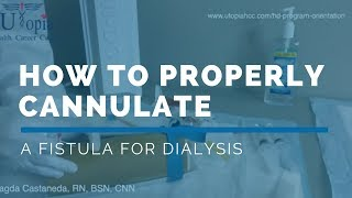 *FREE DIALYSIS TRAINING VIDEO*: HOW TO PROPERLY CANNULATE A FISTULA