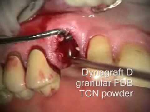 Implant Microsurgery: Transition with Extraction and Bone Graft
