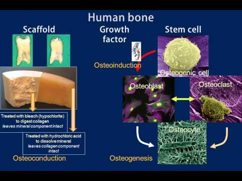 BMP 1211 04 effect of BMP 2 on bone regeneration
