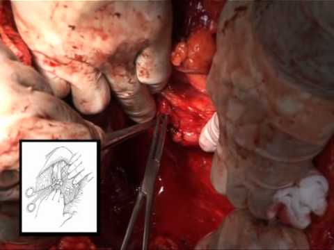 Liver Transplantation Techniques For The Surgical Management Of Renal Cell Carcinoma