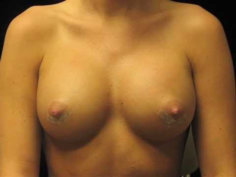 Breast Implant Massage: Top 3 Exercises For Best Post-op Recovery video