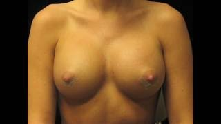 Video clip Breast Implant Massage