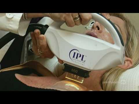 PWTV - Intense Pulsed Light IPL Photofacial