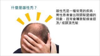 Introduction of androgenetic alopecia and finasteride treatment
