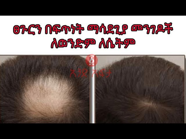 Ethiopia :  Ways to Make Your Hair Grow Faster