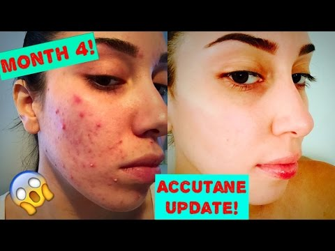 How I Got Rid Of My Acne Month 4 Update