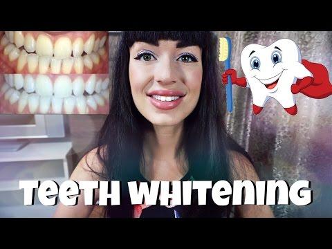 КАК Я ОТБЕЛИВАЮ ЗУБЫ | белизна зубов