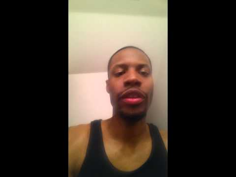 Damon Braces 3month update