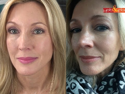 How Much Does A Lift Kit Cost >> My Experience With Botox & Filler (Juvederm) - YouTube