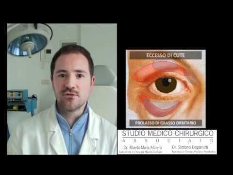 Blefaroplastica – Chirurgia estetica occhi – Dr. Alberto Maria Albiero