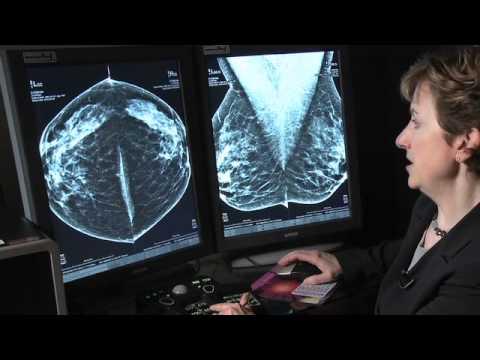elizabeth rafferty tomosynthesis