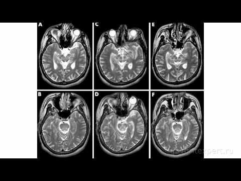 Зачем нужно делать МРТ? Что скрывает наш мозг? Говорит ЭКСПЕРТ