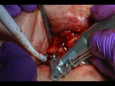 Dental Implant Surgery Video (part 1)