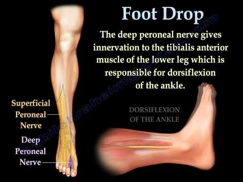 Foot Drop. Peroneal Nerve Injury - Everything You Need To Know - Dr. Nabil Ebraheim