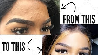 STORYTIME: THE IMPLANT RUINED MY SKIN (how i cleared my skin