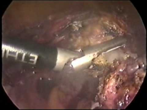 Laparoscopic supracervical