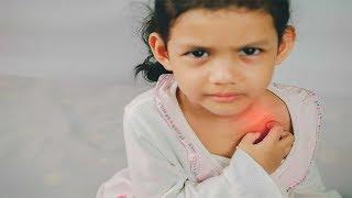 Spring skin disease in children