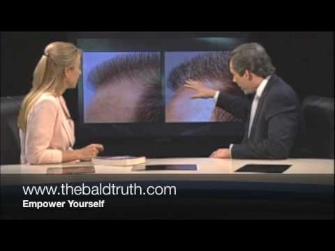 Hair Transplants | The Truth