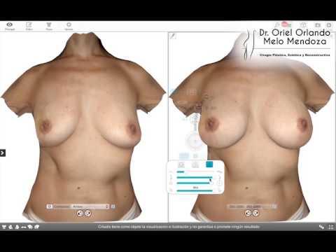 dr-oriel-orlando-melo-mendoza-procedimiento-de-mama