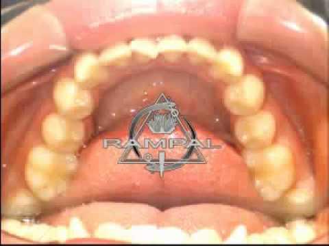 Curso Ortodoncia: Efecto Binario o CUPLA para desrotar giroversiones