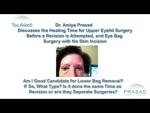 How Long to Wait After Eyelid Surgery before Deciding on a Revision, & Incision-Free Eye Bag Surgery