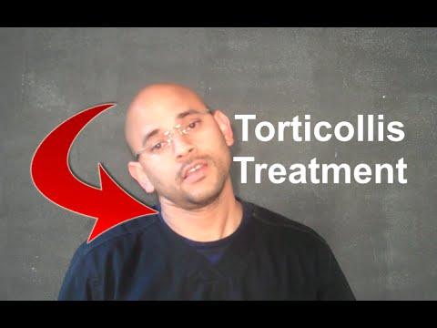 adult torticollis treatments