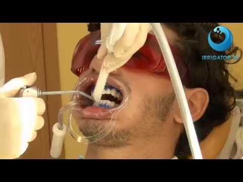 BEVERLY HILLS - профессиональная технология отбеливания зубов