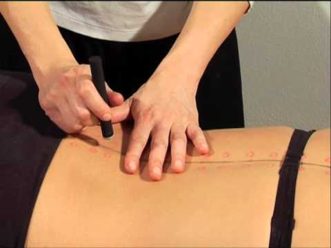 Guida pratica alla ricerca dei punti di agopuntura - Moxa (videocorso in dvd)