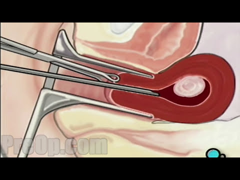 Myomectomy Vaginal Fibroid Removal Surgery PreOp® Patient Education  HD