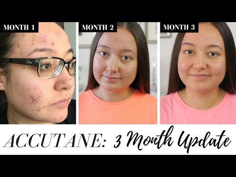 My Accutane Journey | Three Months on Accutane | Side Effects & Pictures