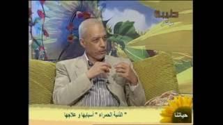 دكتور  مجدى محمد سراج ا   الذئبة الحمراء اسبابها وعلاجها قناة طيبة اعداد شاهيناز درويش