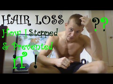 HAIR LOSS: How I Stopped It Naturally - for Men & Women