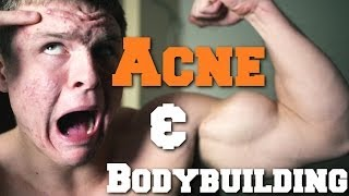 How To Get Rid of Acne as a Bodybuilder | Week 3