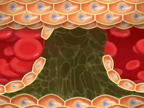 Sisel - Heartify CoQ10 - здоровье сердца,  артеросклероз