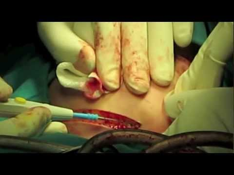 Partial Mandibulectomy & Reconstruction with Iliac Crest Bone Graft