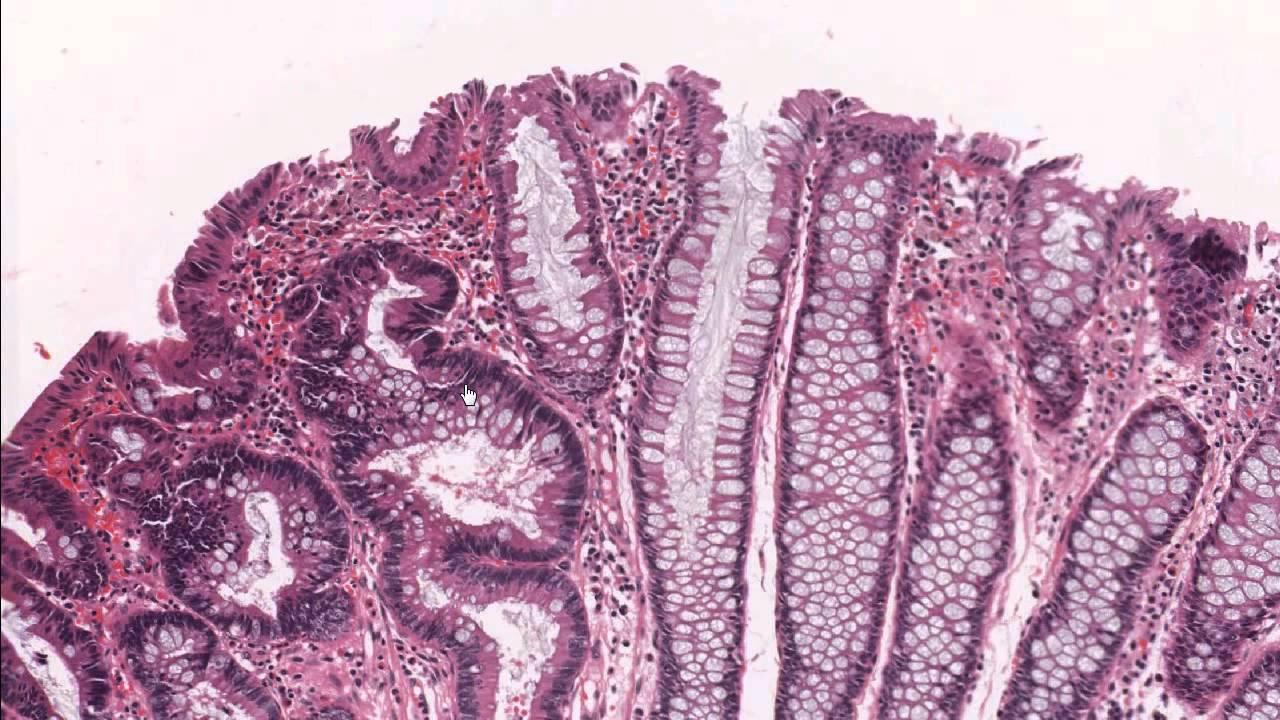 Colon tubular adenoma demonstrating low grade dysplasia ...