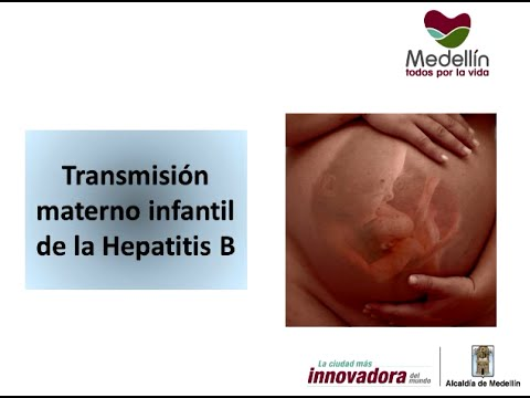 hepatitis b congenita: