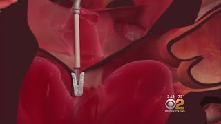 Tiny Heart Clip Can Repair Leaky Valves