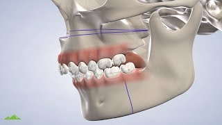 Orthognathic (Corrective Jaw) Surgery in Provo UT: Dr. Harris | Utah Surgical Arts
