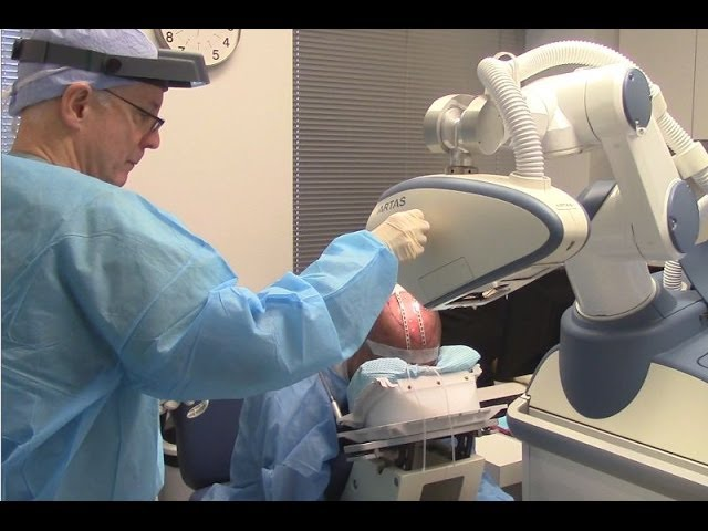 Robot-FUE Hair Transplant Part 2b: Robot Recipient Site Creation