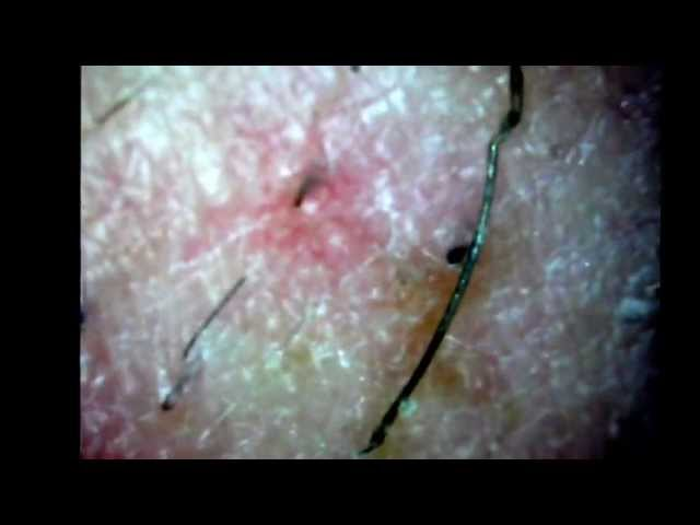 Ingrown Hair Cyst Removal | newhairstylesformen2014.com
