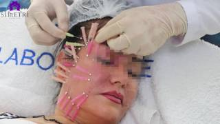 İp yöntemi ile ameliyatsız yüz germe Op.Dr.Esabil YÜKSEL