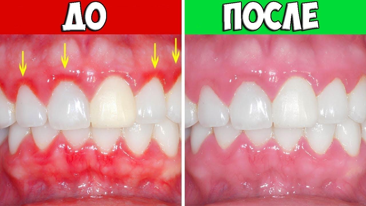 Как лечить воспаление зубов в домашних условиях 70